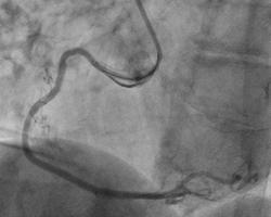 冠動脈治療後
